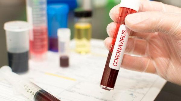Coronavirus_isolato cepo italiano